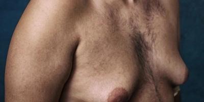 Hombres demandarán a laboratorio por medicamento que les hizo crecer senos