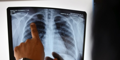 Disminuyen los casos de Tuberculosis en Uruguay