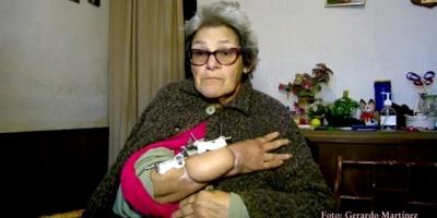 Grave caso de mala praxis afectó a una mujer de Rocha