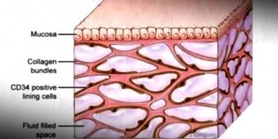 """Descubren que el """"líquido intersticial"""" del cuerpo humano, explicaría la propagación del cáncer, o las arrugas"""