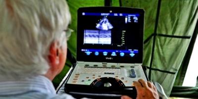 Desarrollan nuevo método de ultrasonidos para diagnosticar cáncer de próstata
