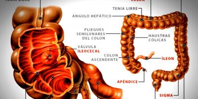 Jóvenes entre 10 y 25 años, los más propensos a padecer apendicitis