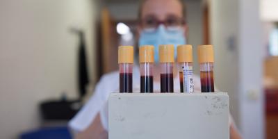 Descubren anticuerpos que bloquean infección de la COVID-19 en las células