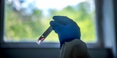 Cerro Largo: Aguardan resultado de 35 análisis por posible contagio