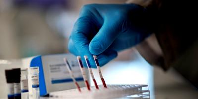 Fueron cerrados temporalmente tres centros de hemodiálisis tras detectarse un caso positivo para COVID-19