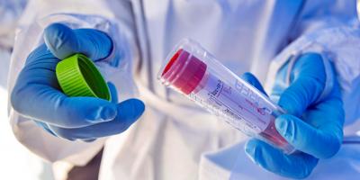 COVID-19: Uruguay registra 239 personas con la enfermedad tras detección de 5 casos nuevos