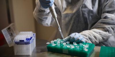 En 40 % de los casos de Covid-19 no se ha identificado nexo de contagio