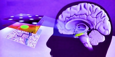 El origen étnico puede aumentar el riesgo de padecer mal de Alzheimer