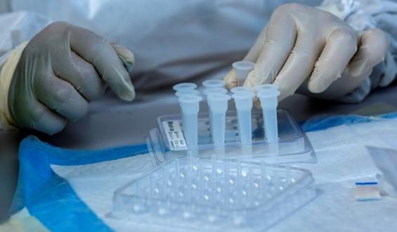 Coronavirus Uruguay: 2.657 casos nuevos y 51 fallecidos este sábado